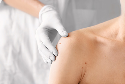 Maternity bőrgyógyászat